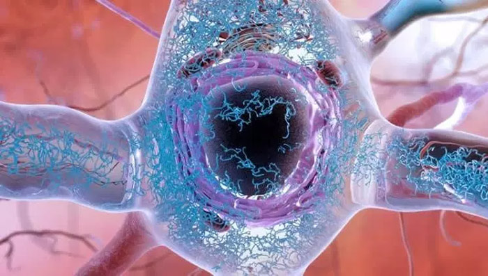 Alzheimers disease identified